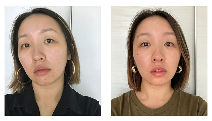 SkinCeuticals C E Ferulic Acid before and after