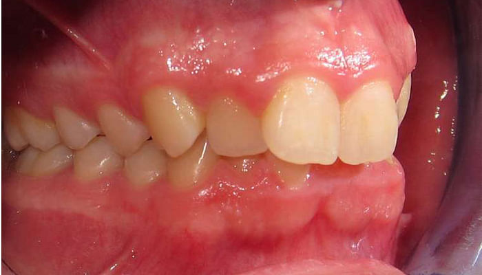 4 Common Children's Dental Problems and How To Fix Them_Deep Ovebite