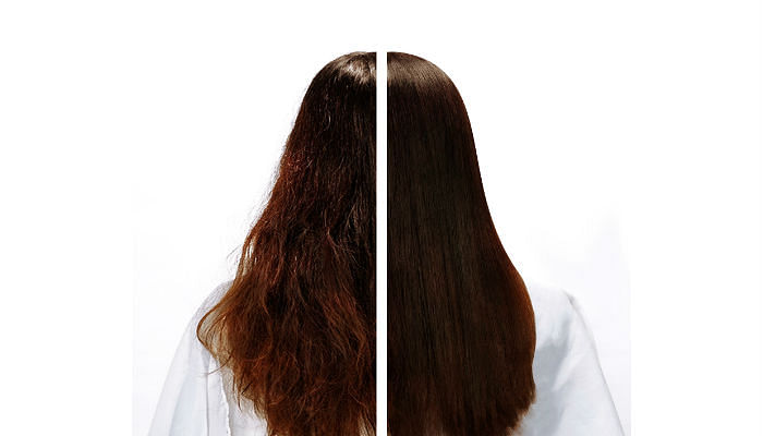 Chez Vous Hair Botox + Fillers Therapy Before and After Imagery