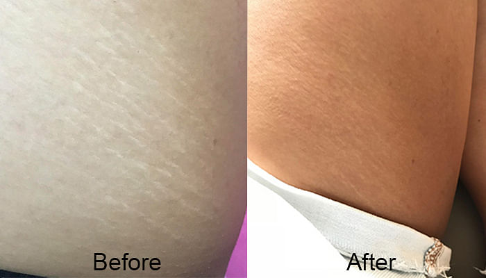 I-Tried-This-At-Home-Tool-Thats-Said-To-Get-Rid-Of-Stretch-Marks_6