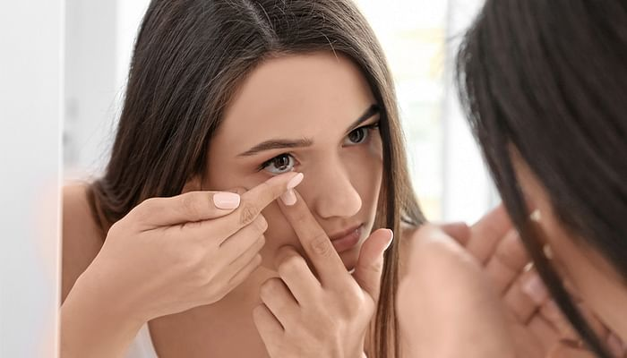 Alcon-woman-putting-on-contact-lens