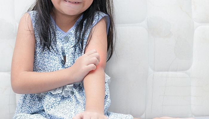Everything Parents Should Know About Eczema kids