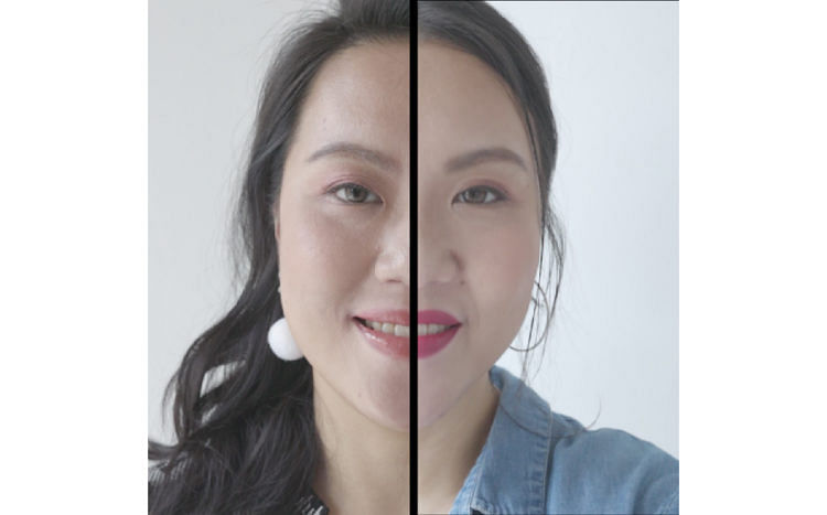 Before and after the Ultherapy treatment review